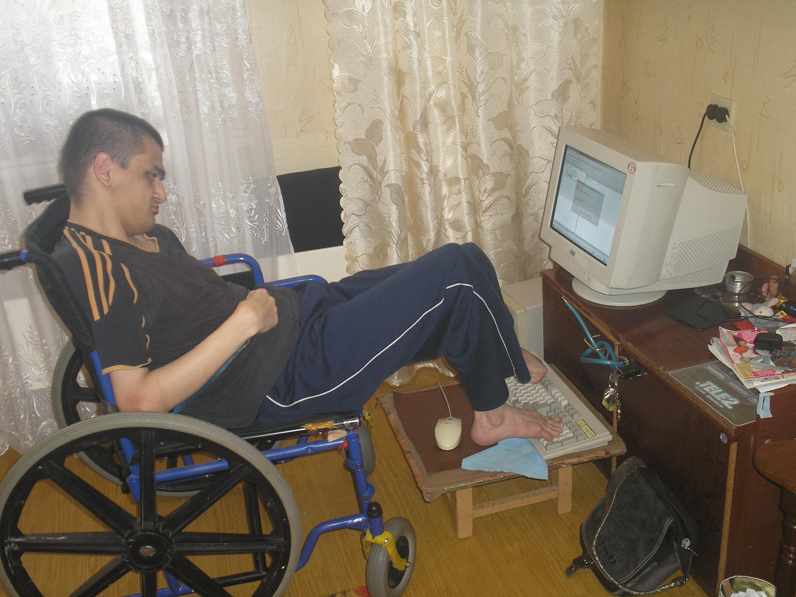 женщина ампути познакомитса с инвалидом